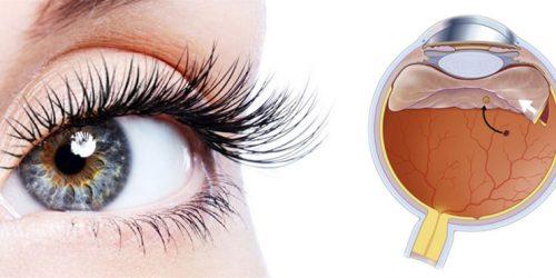 retina-viteo